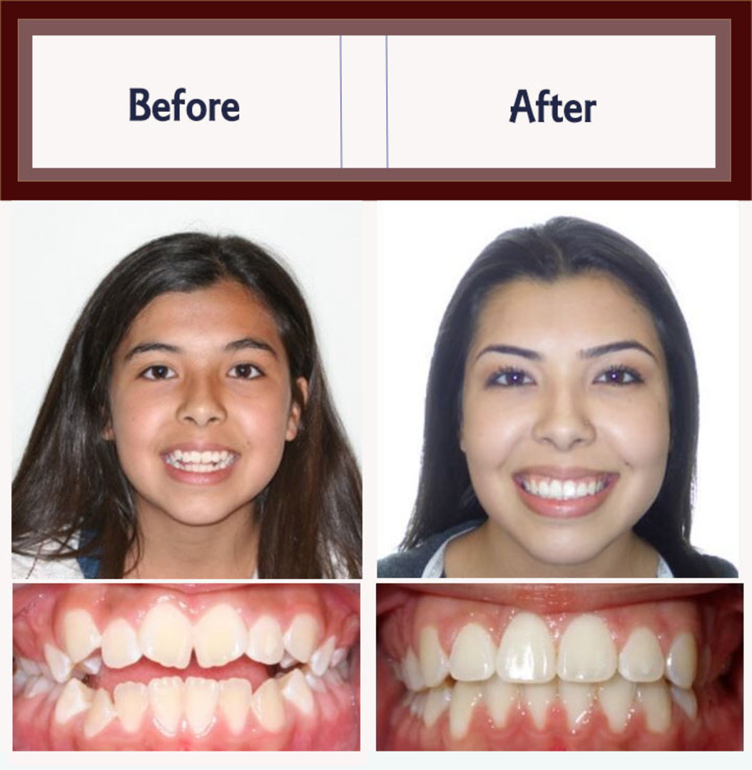 Braces Before and After Total Orthodontics