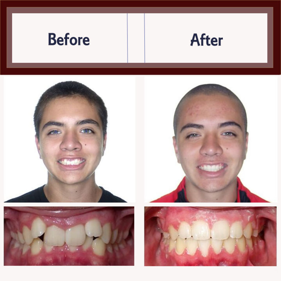 Before And After Orthodontic Treatment Examples