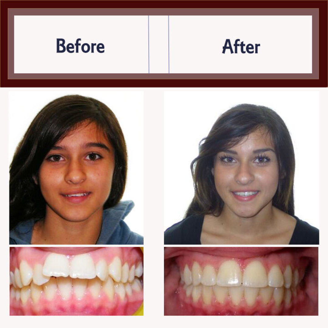 Before And After Orthodontic Treatment Examples Premier Orthodontics